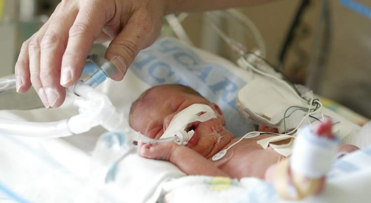 Refluxo em bebês prematuros, quais são as recomendações e dicas.